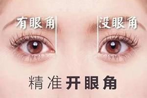 深圳做开眼角手术多少钱 艺星整形医院内外任选/不留疤