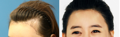 发际线高脱发怎么办 上海雍禾植发整形永久植发价格表