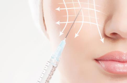 嘴角纹有皱纹怎么办 广州星团整形医院打玻尿酸除皱价格表【新】