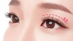 广州现代医院整形科双眼皮修复价格表 宽/窄/痕全面修复