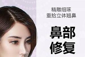 杭州隆鼻修复手术哪家好 时光整形医院修复鼻贵不