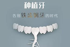种植牙多少钱一颗寿命多久 重获美牙大口吃肉
