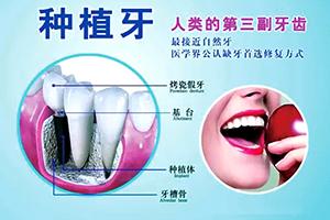 种植牙价格表  2021价格公布 还您健康牙齿