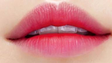 提升颜值改善厚唇 厚唇修薄术需要多久能恢复呢
