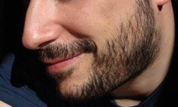 移植胡须的过程及术后情况是怎么样的 优势是什么