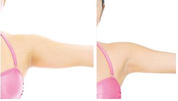 手臂吸脂风险大吗 有哪些优势  拥有纤细手臂