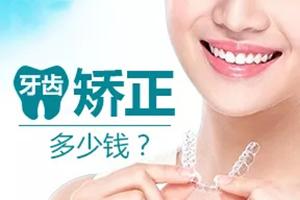 2021牙齿矫正多少钱 收获健康好牙齿