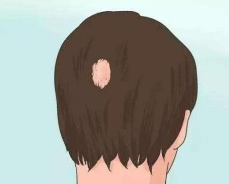 疤痕植发会反弹吗 效果怎么样  重获美丽