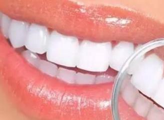 牙齿矫正的手术时间要多久 矫正牙齿跟牙齿歪斜说再见