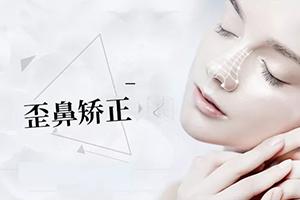 2021做歪鼻矫正多少钱 鼻型重塑 打造秀气鼻梁