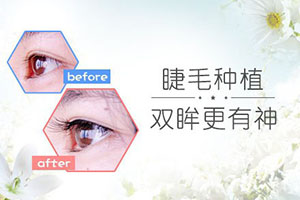 睫毛种植效果好吗 一般能维持多久  拥有纤长睫毛