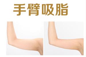 手臂吸脂手术疼不疼  轻松打造天鹅臂