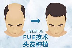毛发移植 头顶加密价格表大公开 再也不怕低头了