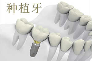 牙齿掉了多久可以种植牙 种植牙的寿命是多久