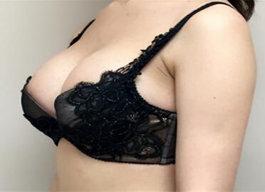 做副乳切除能够去除腋臭吗 副乳切除术效果如何