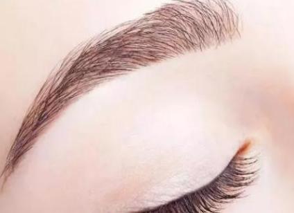 修正不良纹眉 切眉术效果怎么样