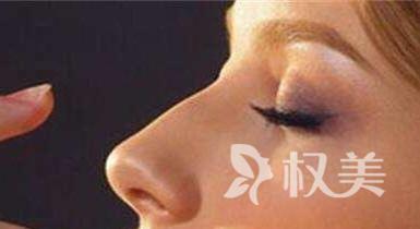 杭州静港整形医院硅胶隆鼻术有什么优势 可以维持多长时间
