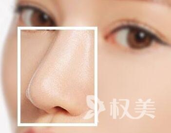 苏州美容整形隆鼻哪家好 假体隆鼻价格是多少