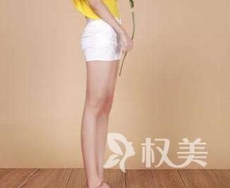 上海美联臣整形医院双腿抽脂多少钱 重获纤细美腿