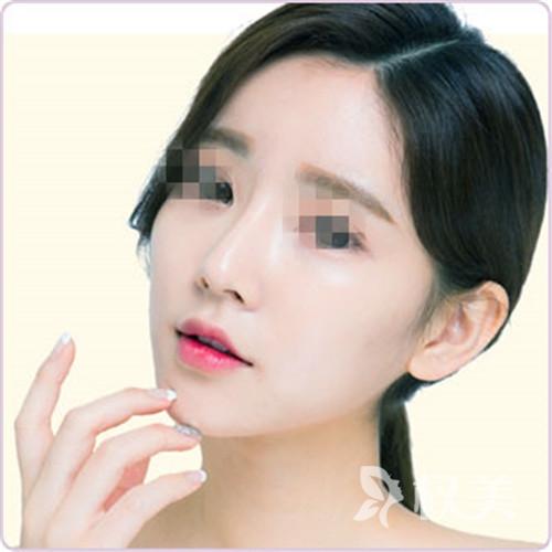 益阳瑞澜整形美容医院鼻子整形 让五官更有立体感
