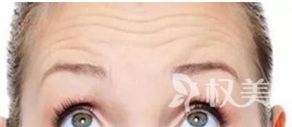 抬头纹出现的原因 青岛海伦整形医院激光去除抬头纹的优点