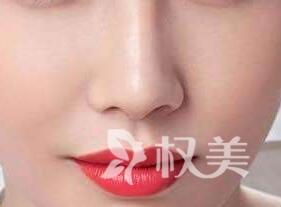 广州军美整形医院隆鼻手术价格是多少 假体隆鼻适宜人群有哪些