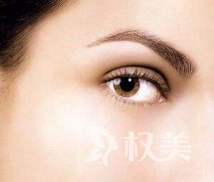 眼角纹怎么消除 唐山美联臣做激光去鱼尾纹能维持多久