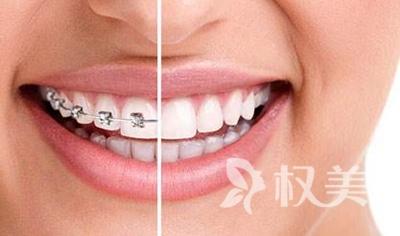 牙齿地包天怎么矫正 重庆拜博口腔医院地包天矫正多少钱