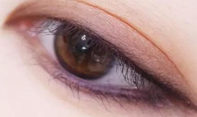 福州双眼皮手术贵吗 福州海峡整形双眼皮手术价格