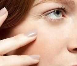 眼角纹怎么去除 威海做激光除皱哪家好