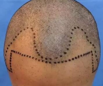 植发有用吗 杭州科发源做头发加密适宜人群有哪些
