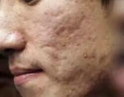 哈尔滨禾力康整形医院价格表 激光治疗痘坑多少钱