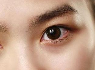 北京美莱医疗美容医院开内眼角 打造你的专属魅力桃花眼
