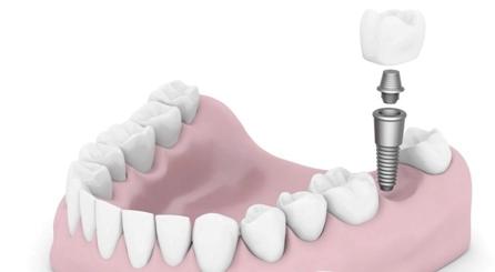 北京德贝口腔种植牙需要多少钱 有没有危害