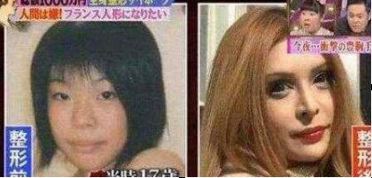 日本少女Vanilla整容前后对比照 曾因太丑被人嘲笑