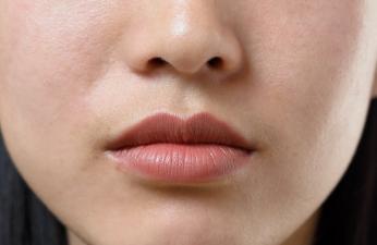 北京整形美容整形医院专业隆鼻整形手术改造你的鼻小柱延长